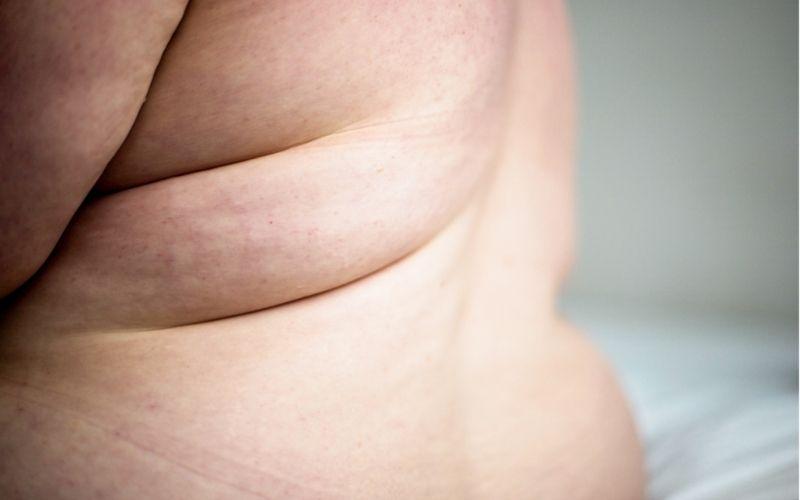 Waarom bodypositivity dikke mensen niet (meer genoeg) helpt